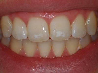 Atentie, ce inseamna petele albe de pe dinti?