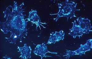 Remediul care ucide peste 90% din celulele canceroase in doar doua zile! Medicii nu vor sa afli asa ceva!