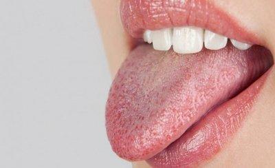 De ce trebuie sa eviti sa ai gura uscata? Vezi ce spune medicul