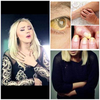 Simptomele bolii Denisei Raducu! Nu le ignora - orice femeie trebuie sa stie cum se manifesta un ficat bolnav