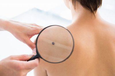 Exista riscul sa dezvolti cancer de piele daca scoti o alunita? Ce spun specialistii