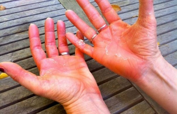 psoriazis pustular lesions on hands