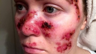 Mergea săptămânal să se bronzeze la salon! Ce i s-a întâmplat acestei fete este teribil - Toate femeile au făcut asta după ce au văzut-o aşa