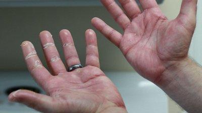 Simptomele cancerului apar prima data pe mana. Cum arata