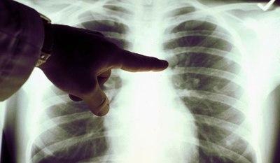 Simptomele periculoase ale celui mai agresiv tip de cancer: cancerul pulmonar. Cum iti dai seama daca ai boala