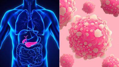 Simptomele celui mai teribil tip de cancer: cancerul pancreatic. Trec neobservate pana cand boala nu mai poate fi tratata