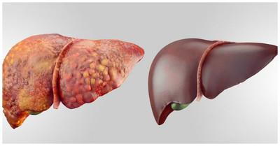 Boala silentioasa de ficat care duce la cancer. Asa se depisteaza la timp