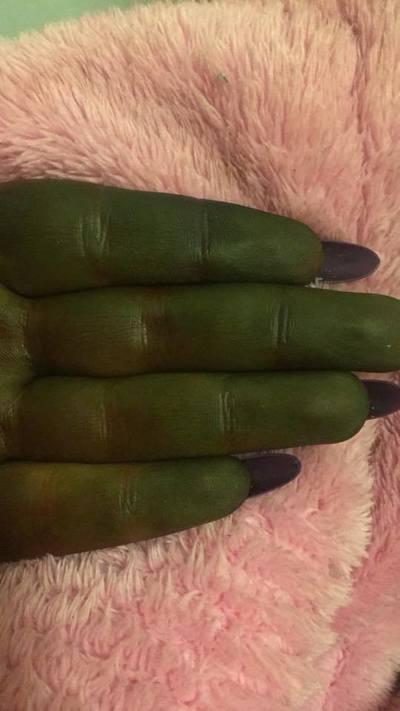S-a transformat in Shrek! Pielea unei tinere s-a facut verde dupa ce a folosit autobronzant! E uluitor cum a ajuns sa arate!