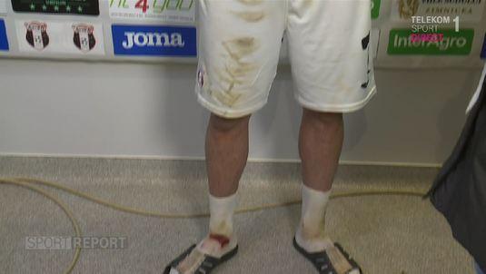 VIDEO | Aşa afli sigur dacă un penalty este corect acordat! Claudiu Belu a venit cu glezna sângerând la flash-interviuri!