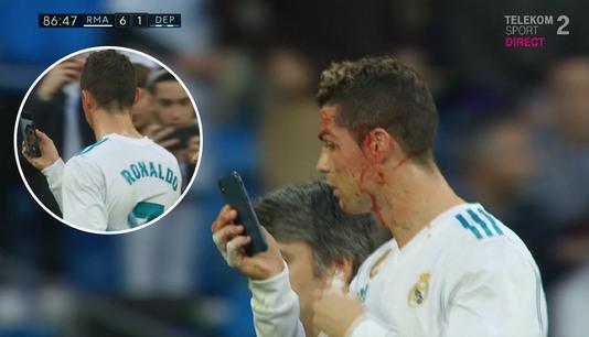 VIDEO INCREDIBIL | Ce a făcut Ronaldo în momentul în care a fost umplut de sânge de un adversar: le-a cerut medicilor un telefon