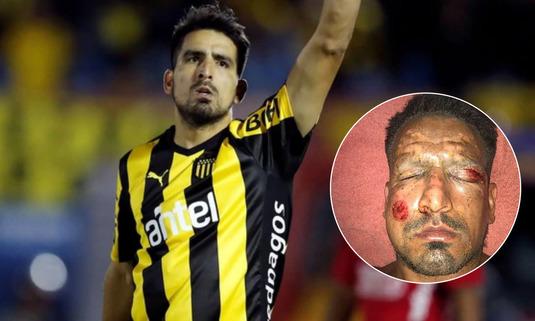 FOTO | Incident şocant de sărbători pentru un internaţional argentinian! Cum arată după ce o petardă i-a explodat în faţă
