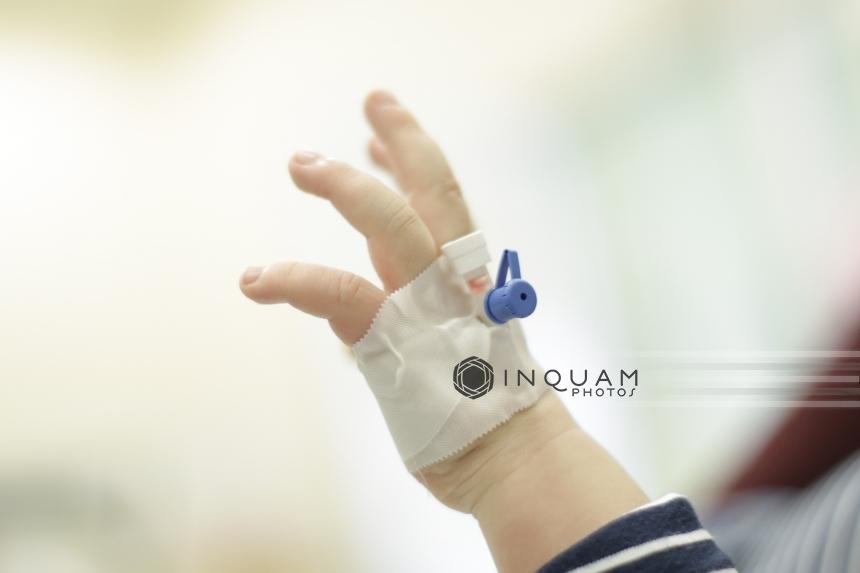 Bebeluş De Zece Luni Diagnosticat Cu Rujeolă şi Newsro