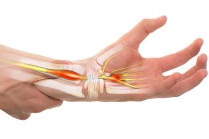 boala articulației mâinilor din vibrații)