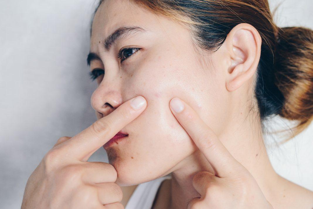 Remedii naturale pentru tratarea acneei. Cum scapi simplu de coşurile de pe faţă