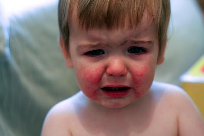 Boala obrajilor pălmuiţi revine. Cum se manifestă cea de-a cincea boală a copilăriei