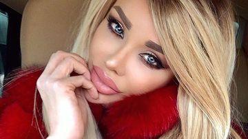 Bianca Dragusanu si-a injectat din nou buzele! Cum arata acum, dupa ce si-a pus iar acid hialuronic