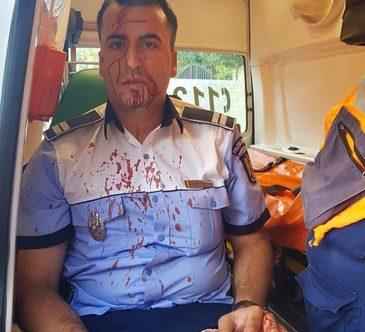 Politistul batut pana la sange de un sofer e sarac lipit! Vezi pentru ce salariu isi risca viata agentul Cristian Bitica!