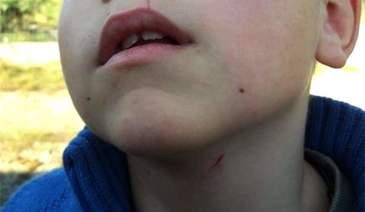 Răsturnare de situaţie în cazul învăţătorului, acuzat că a strâns de gât un elev
