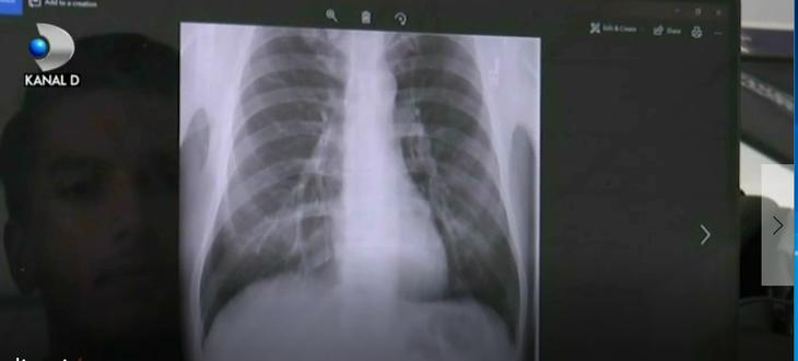 O aplicatie online citeste gratuit radiografii si pune diagnostice. Este inventia unor studenti de la Universitatea Politehnica din Timisoara