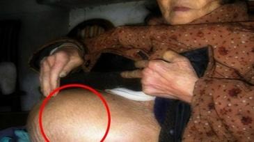 Cazul socant al femeii de 92 de ani care s-a dus la doctor pentru ca burta ei tot crestea si incepuse sa o doara. Ce au descoperit medicii este de neimaginat