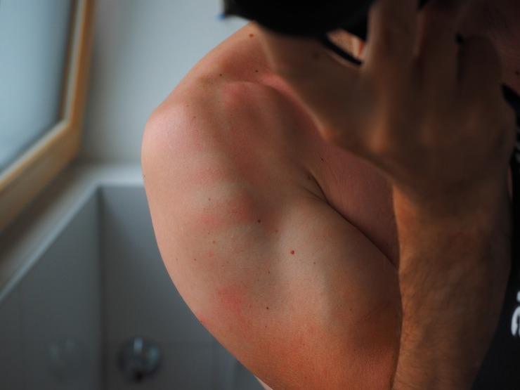 Boli de piele - 5 afecţiuni care se complică din cauza soarelui! Razele UV sunt un real pericol!