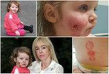 Şi-a lăsat fetiţa într-un loc de joacă, iar când s-a întors de la cumpărături a avut un şoc! A fost muşcată de 15 ori de către alţi copii! Micuţa a rămas cu cicatrici pe viaţă!