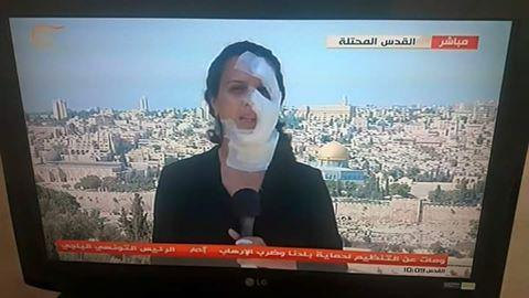 Israel grenade tv reporter bandaged Hana Hammad_ The independent